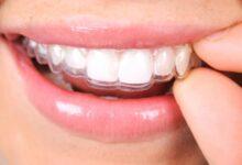 Ortodonti Tedavisinde Evde Acil Müdahaleler Nasıl Yapılır?